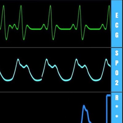 Heart Rate Ranges in Neonates