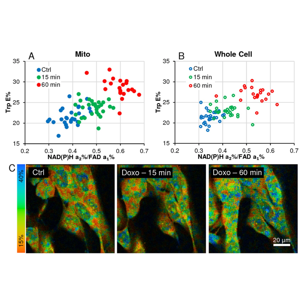 Fluorescence Lifetime Imaging Microscopy in Cancer Research