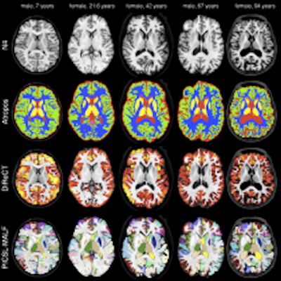 Quantifying Cerebral Cortex Regions